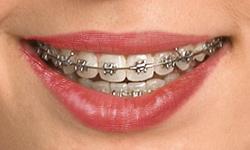 self-ligating-braces